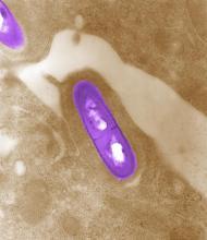 Listeria under microscope